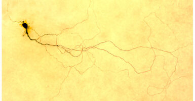 Photoreceptive ganglion