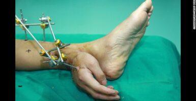 Xei's handfoot