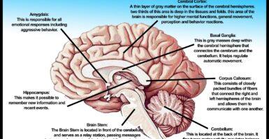brain autism