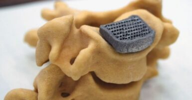 3d printed spinal implant