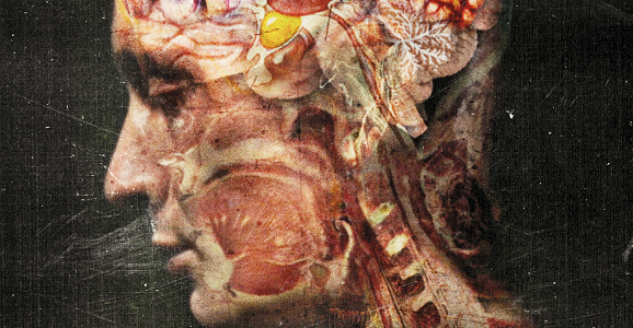 gerber syndrome