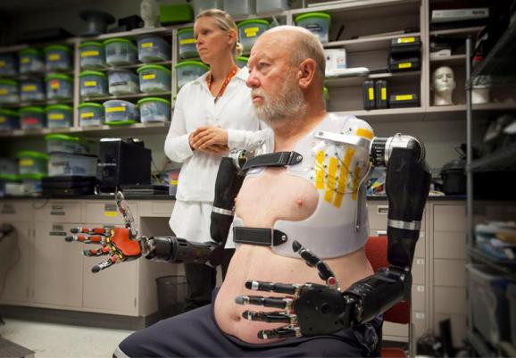 double prosthetic