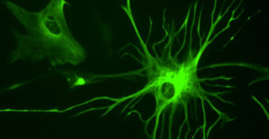 human glial cells and tendrils